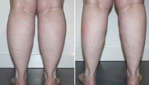 Bắp chân to gây mất thẩm mỹ vóc dáng