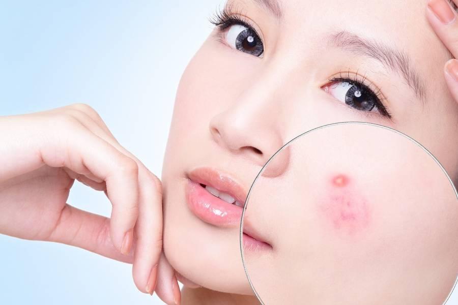 Sử dụng bơ sẽ giúp nốt mụn không sưng đỏ nhờ những chất chống viêm và làm dịu da.